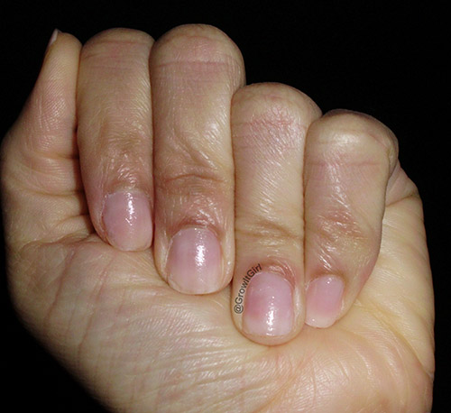 My Damaged Nails Before Probelle Touch N' Grow Nail Hardener